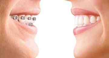 Invisalign Teen: la ortodoncia invisible ideal para los deportistas jóvenes