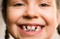 8 signos de alarma que indican la necesidad de visitar a tu ortodoncista