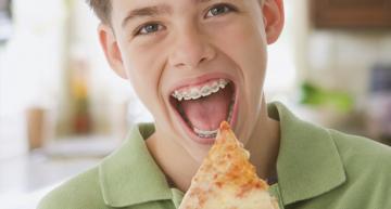 Ortodoncia en niños deportistas (y II): tipos de aparatos, duración y éxito de los tratamientos