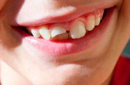 Mi hijo se da un golpe y pierde un diente: ¿qué tengo que hacer?